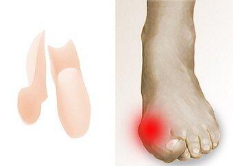 2560 all U like ซิลิโคนดูแลอาการคดงอของนิ้วโป้งSilicone Gel Toe Separators (soft brown)